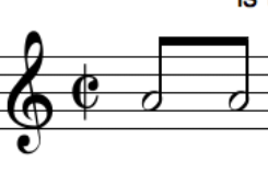 Eighth notes with half note heads [please help] | MuseScore